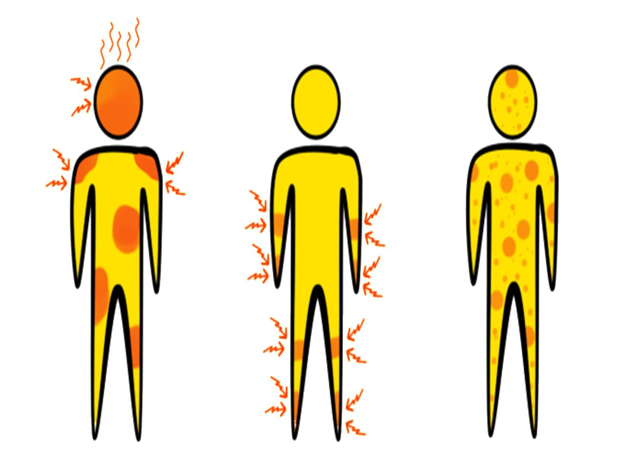 symptoms 1351005 1280
